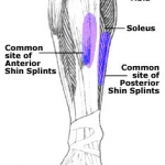Singapore Marathon Injury Guide – Shin Splints