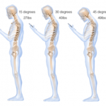 What texting does to your neck – who knows where to find an aadvark?